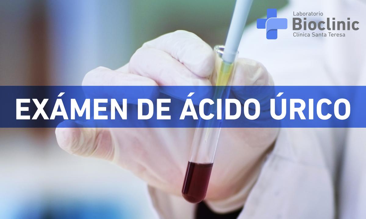 alimentos buenos contra la gota remedio natural acido urico alto principales causas del acido urico